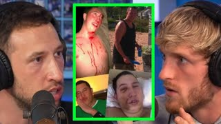 MIKE DESCRIBES MOST GRUESOME INJURIES EVER ENDURED